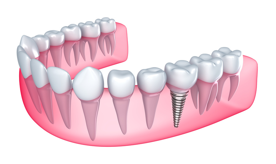Implants / cirugía Oral_1